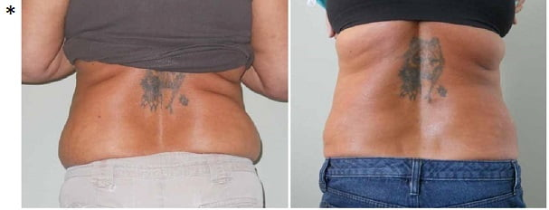 weight loss example: before and after photos: Slender Body Solutions